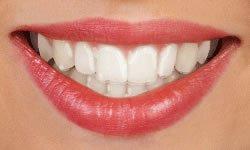 Invisalign   St. Louis Orthodontist