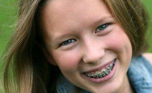 Contact a Fenton Orthodontist