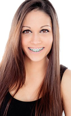 Metal Braces | Orthodontist in St. Louis