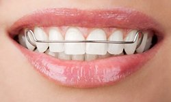 Hawley Retainers | St. Louis Orthodontist